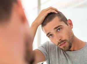 Trapianto dei capelli: le calvizie e il loro trattamento